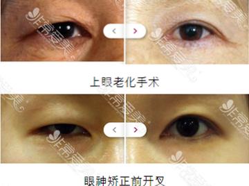 韩国IWANT整形外科眼角修复效果好吗