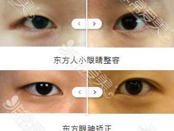韩国IWANT整形外科朴炳柱院长双眼皮是什么风格