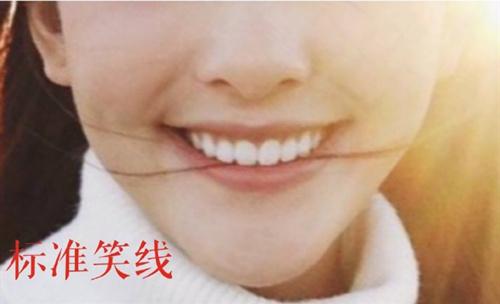 牙齿整形大概多少钱