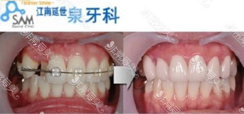 韩国牙齿整形医院哪家好