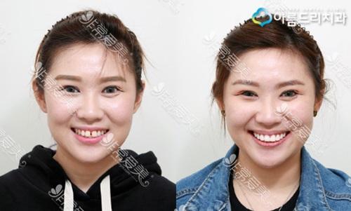 韩国安特丽牙齿整形真人案例