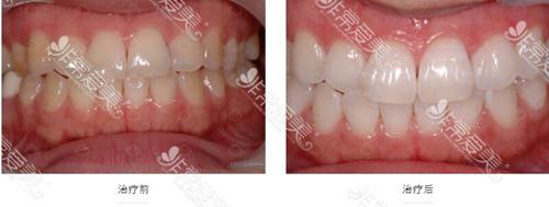 牙齿美白去哪个医院