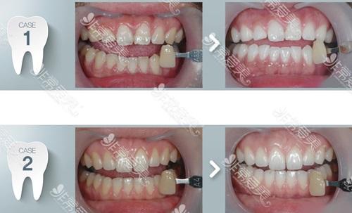 牙黄变白实用的方法是什么