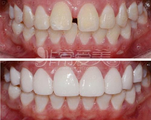 韩国安特丽牙齿美容案例图