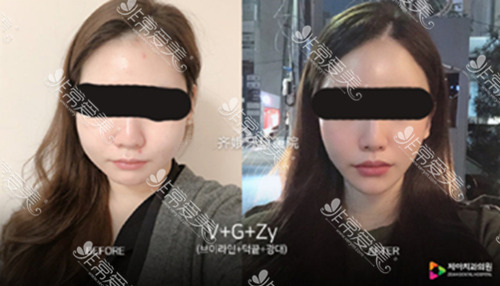 韩国齐娥医院官网轮廓整形案例