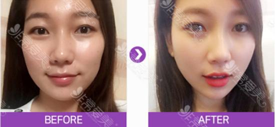 韩国artline皮肤科皮肤管理案例