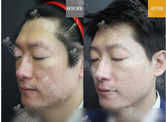 韩国童颜中心祛痘坑案例