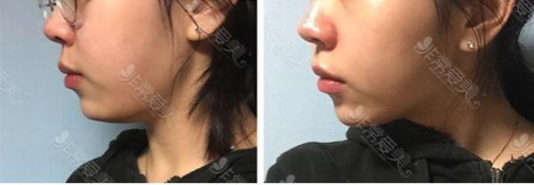 韩国raffine皮肤科皮肤管理案例