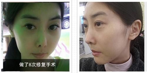 高难度鼻修复手术案例