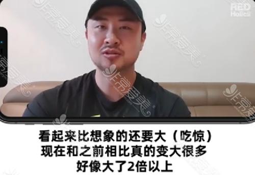 世檀塔男科医院视频(五):男性增粗增长后的蜕变