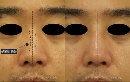 韩国SONE整形外科男士鼻矫正手术对比案例