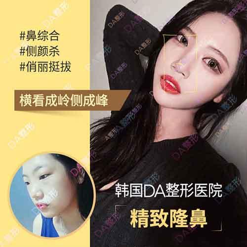 韩国DA整形外科鼻部整形