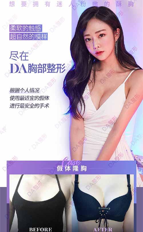 韩国DA整形外科胸部整形案例图
