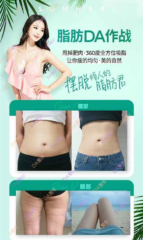 韩国DA整形外科吸脂案例图