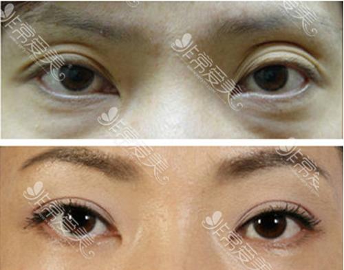 BIO整形医院眼睛修复案例