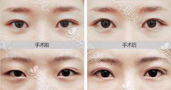 POP整形医院眼睛修复前后对比图