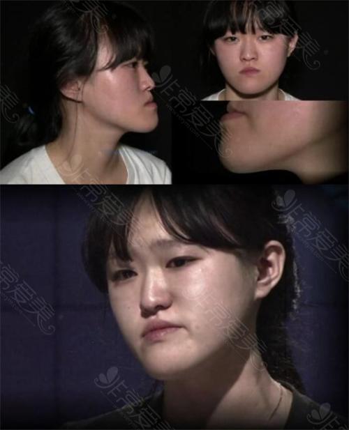 韓國profile整形醫院地包天矯正術前照片