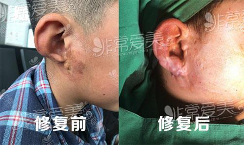韩国普罗菲耳耳畸形矫正术后即刻照片