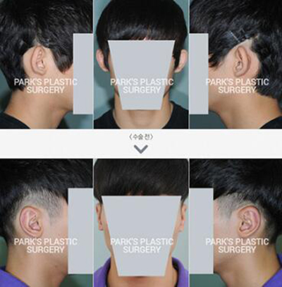 韓國BIO整形外科醫院樸徹耳部整形照片