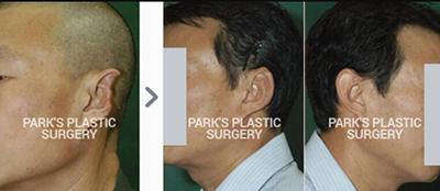 韓國BIO整形外科醫院樸徹缺失耳整形照片