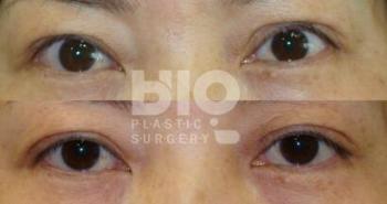 韩国BIO眼部修复前后照片