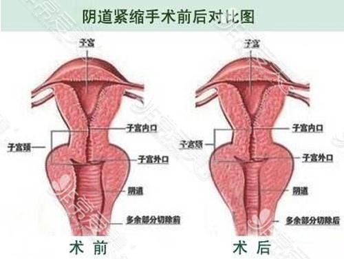 阴道紧缩手术效果示意图