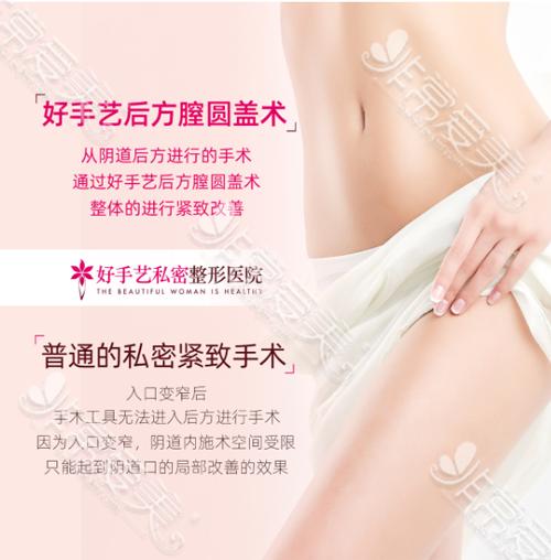 后方膣圆盖术与普通手术区别