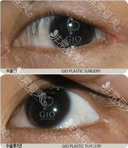 GIO医院外眼角疤痕修复案例