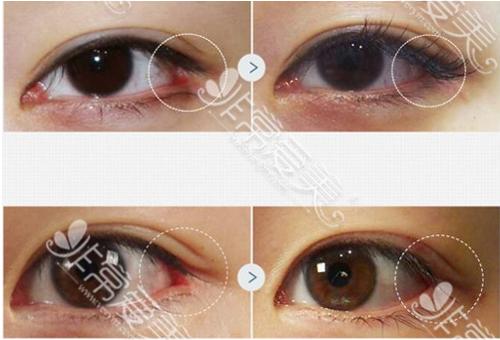 SWAN医院眼角修复案例