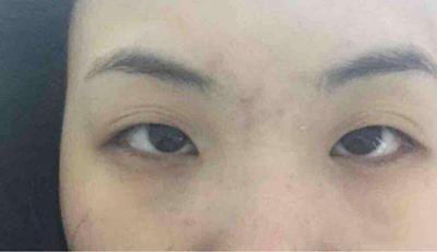 眼皮松弛导致的眼尾下垂照片