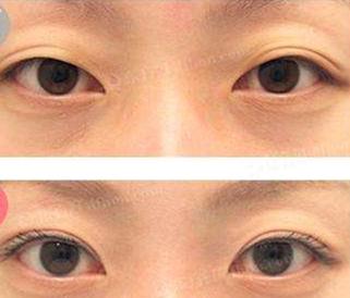 韩国kidari整形外科使用切开双眼皮进行眼尾提升效果图