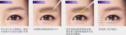 韩国kidari整形外科提眉术法详解图