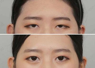 韩国kidari整形外科使用提眉术进行眼尾提升效果图