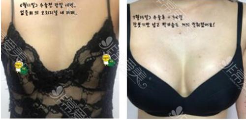 韩国PJS医院隆胸前后对比图