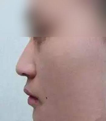 隆鼻后鼻尖下垂案例