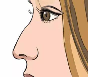 鼻综合手术后鼻尖下旋怎么办