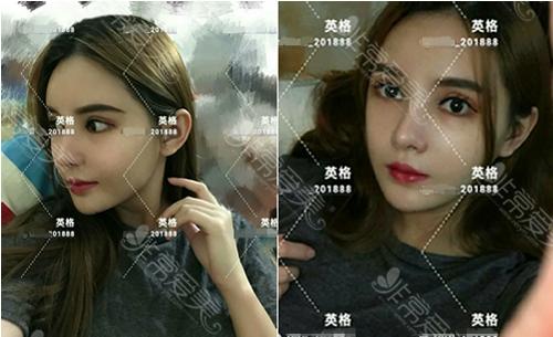 韩国英格整形医院下颌角手术效果图