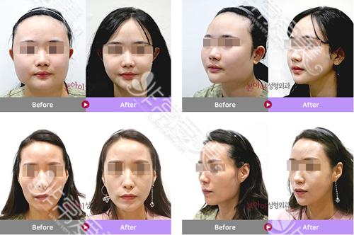 韩国本爱整形外科下颌角案例