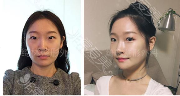 韩国绮林整形外科下颌角手术案例