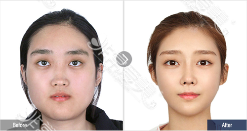 韩国菲斯莱茵整形医院下颌角整形案例