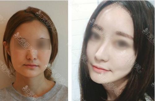 韩国伍人整形外科下颌角整形案例