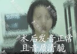 韩国艺颂嗓音中心治疗痉挛性发音障碍效果好吗