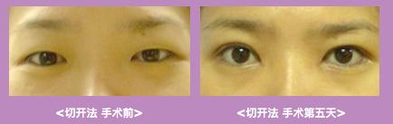 韩国美人制造整形外科眼部手术案例