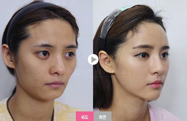 韩国yt整形外科全脸综合整形案例