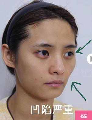 韩国全脸综合整形对比