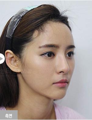 韩国全脸综合整形案例对比
