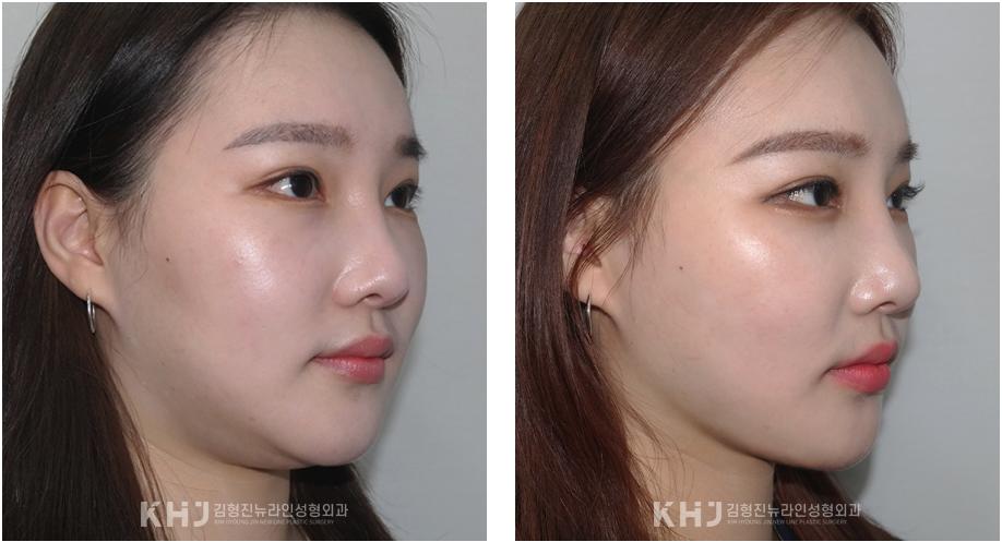 韩国面部吸脂案例对比