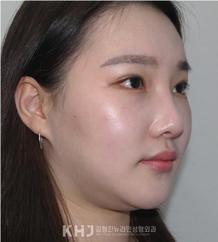 韩国金亨珍整形外科下颌缘吸脂