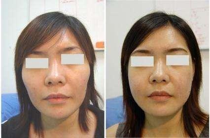 韩国然禧轮廓手术效果对比