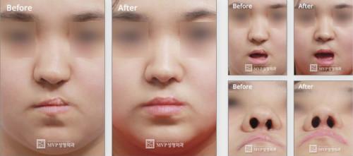 唇腭裂鼻畸形矫正